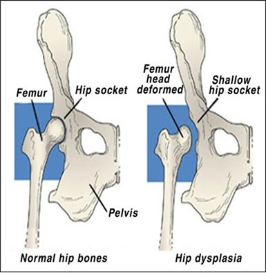 dog hip dysplasia diagram