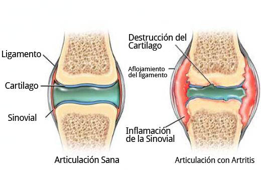 destruction of cartilage
