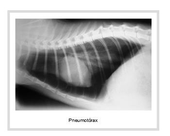 pneumotoracica