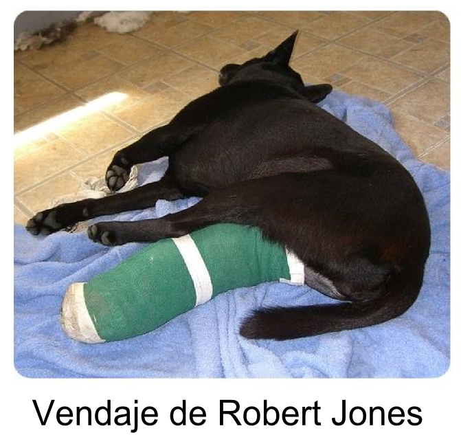 vendaje de Robert Jones
