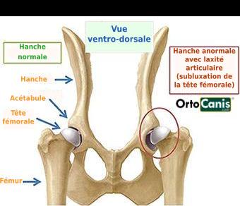 Orthèse de soutien des hanches