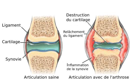 Destruction du cartilage Chien avec arthrose