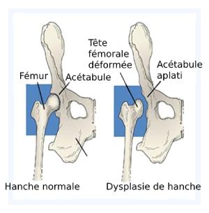 Dysplasie de la hanche