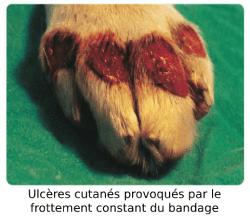 Ulcères cutanés bandage