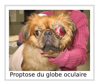 Proptose du globe oculaire