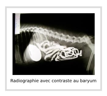 Radiographie avec contraste au baryum