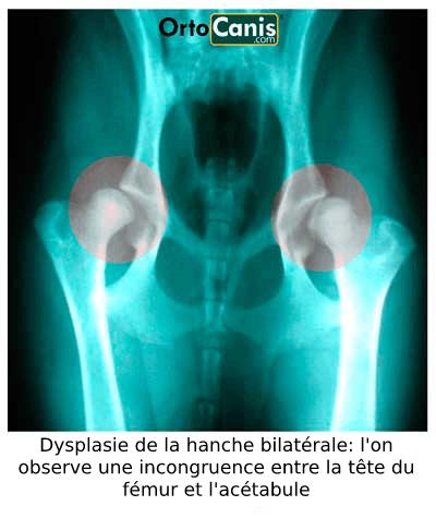 Dysplasie bilatérale de la hanche